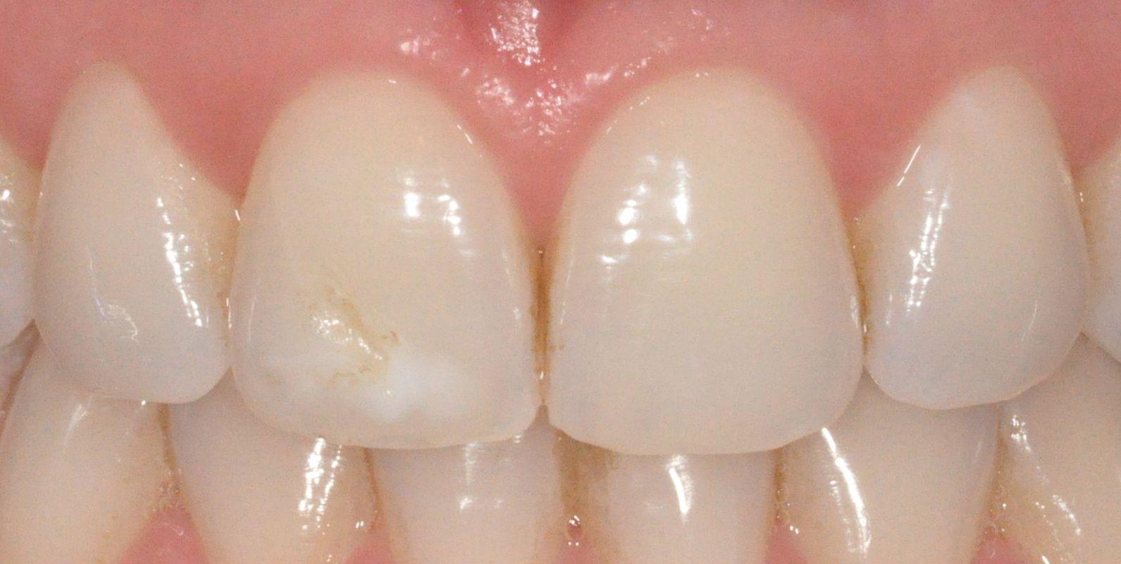 Taches blanches sur les dents adulte