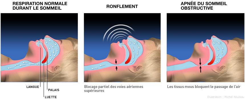 Les troubles respiratoires du sommeil paris 6 75006 dr delphine uzan - Les troubles du sommeil ...