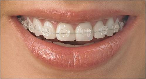 Orthodontie adulte paris 6